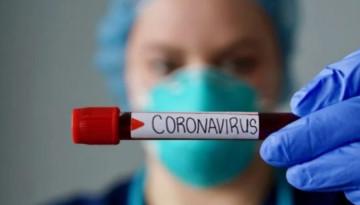 Немецкие ученые ожидают два года пандемии коронавируса